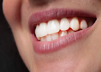 Porcelain Veneers in Norwalk, CT