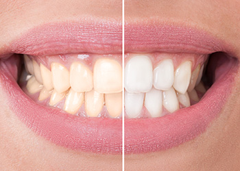 Teeth Whitening in Norwalk, CT