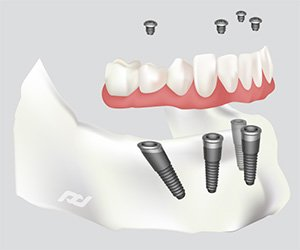 All-on-4 Dental Implants in Norwalk, CT